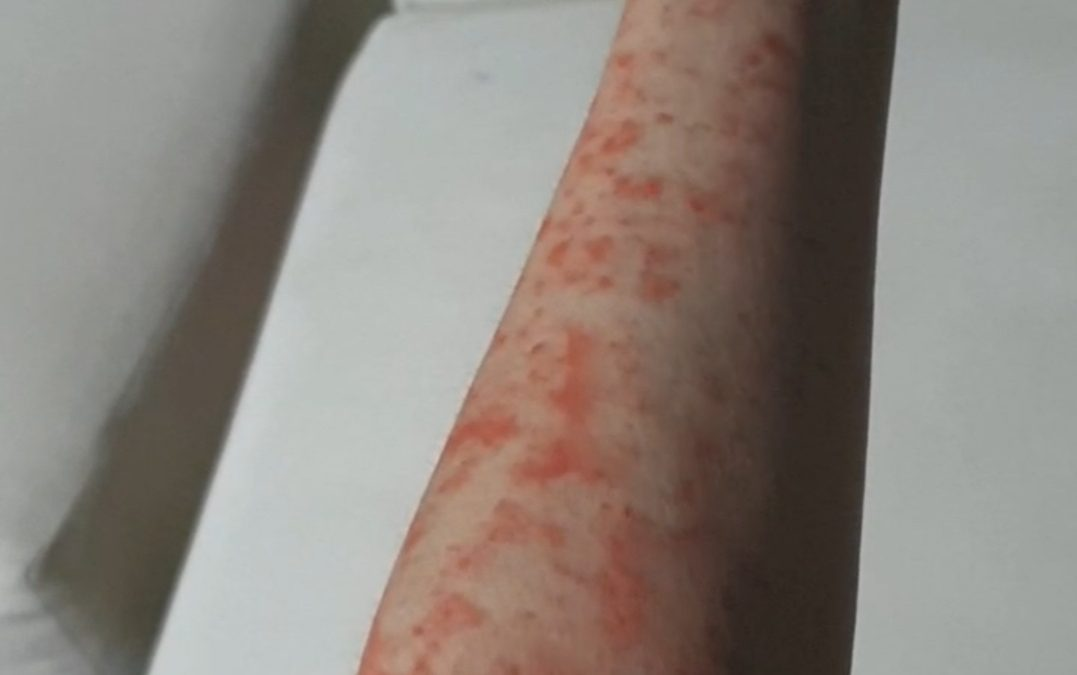 MEASLES Skin Infection